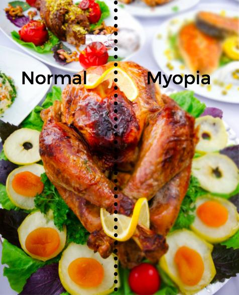 turkey-myopia