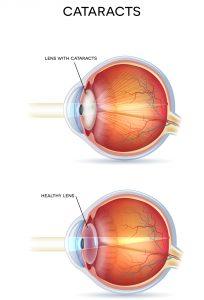 Cataracts Diagram