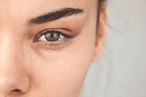 Freckle on eye