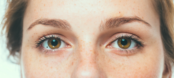 Eye Freckle